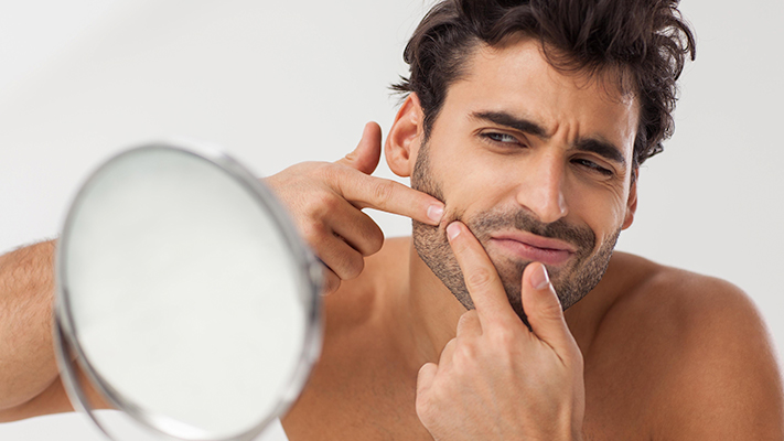 quick ways you can follow to prevent adult acne